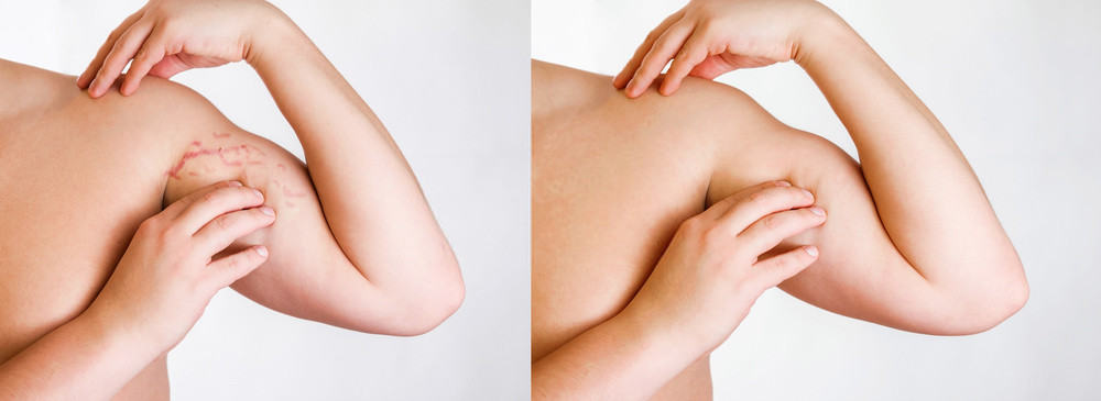 Stretch marks before and after Vitamin E